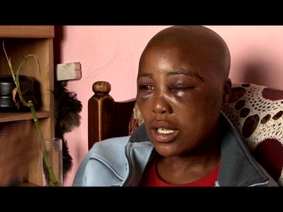 Photoessay  Lesbians At Risk In South Africa - Allafricacom-3855