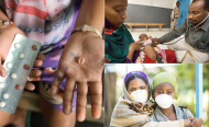 Global Fund Points Finger at Locals for Sqandering TB Funds